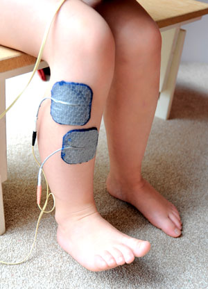 Functional Electrical Stimulation Treatments